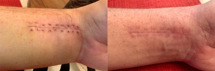 Wrist 1week comparison